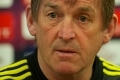 Dalglish_iv_160311_presser_1120x80_120X80